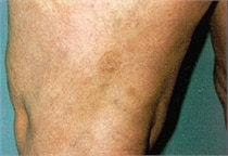 laser vein therapy after photo