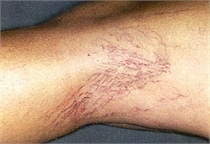 laser-vein-therapy-before-01