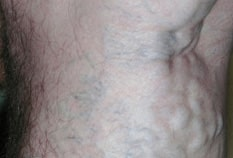 sclerotherapy-before-01