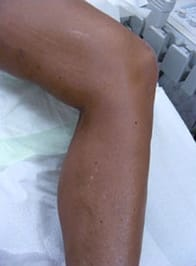 Leg with Varicose Veins after treatment