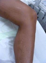 varicose-veins-after-01