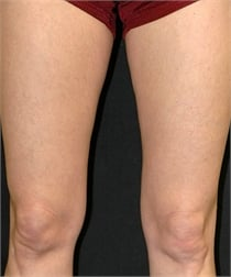 Varicose veins on leg after treatment