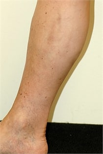 varicose-veins-after-03