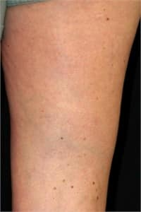 Varicose Veins & Spider Veins After