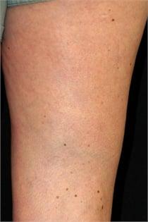 varicose-veins-after-04