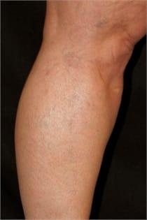 varicose-veins-after-05