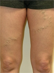 varicose-veins-before-02