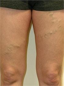 varicose-veins-before-02