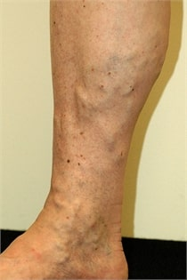 varicose-veins-before-03