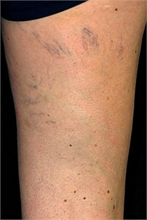 varicose-veins-before-04
