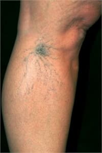 Before the Varicose Veins Treatment