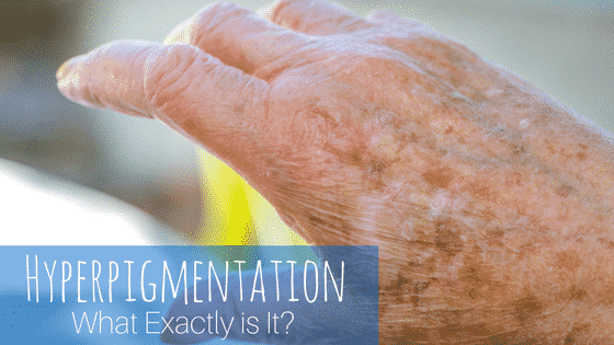 Hyperpigmentation: What Exactly is It?
