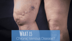 Chronic Venous Disease?