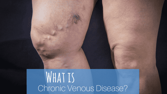 What is Chronic Venous Disease?