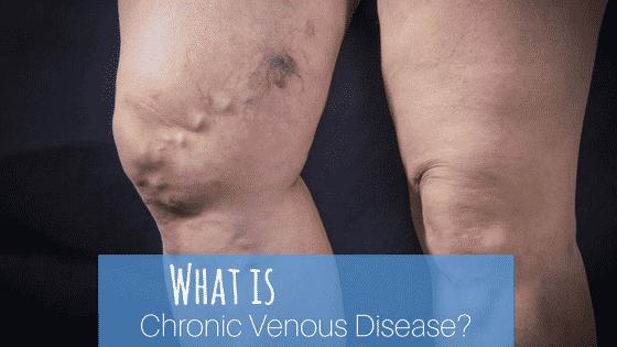 What is Chronic Venous Disease?